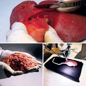 La impresión tridimensional revoluciona la cirugía