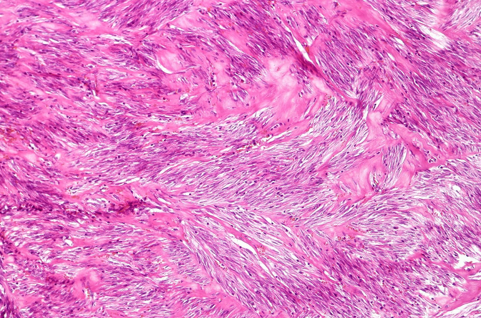 Un antiguo fármaco contra el cáncer de mama regula las células tumorales del páncreas