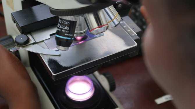 El 10 por ciento de las muertes en pacientes con VIH se debe a infección por criptococo