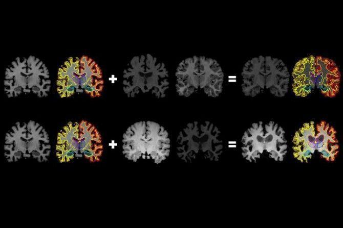 Desde un escáner cerebral, más información para inteligencia artificial médica.