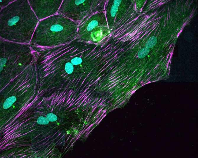 Las células de dos núcleos podrían ser la clave en la regeneración de corazón