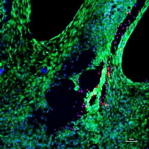 Un novedoso hidrogel ayuda a regenerar el cartílago