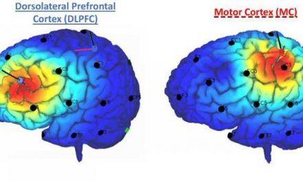 ¿Una nueva vía cerebral para aliviar el dolor?
