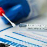 RD exige prueba PCR a viajeros de 22 países por la variante delta